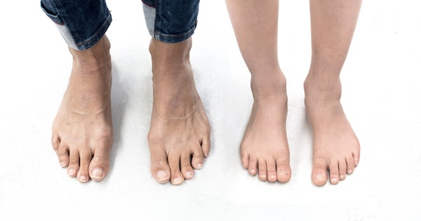 Ugly Feet In Hollywood photo 28