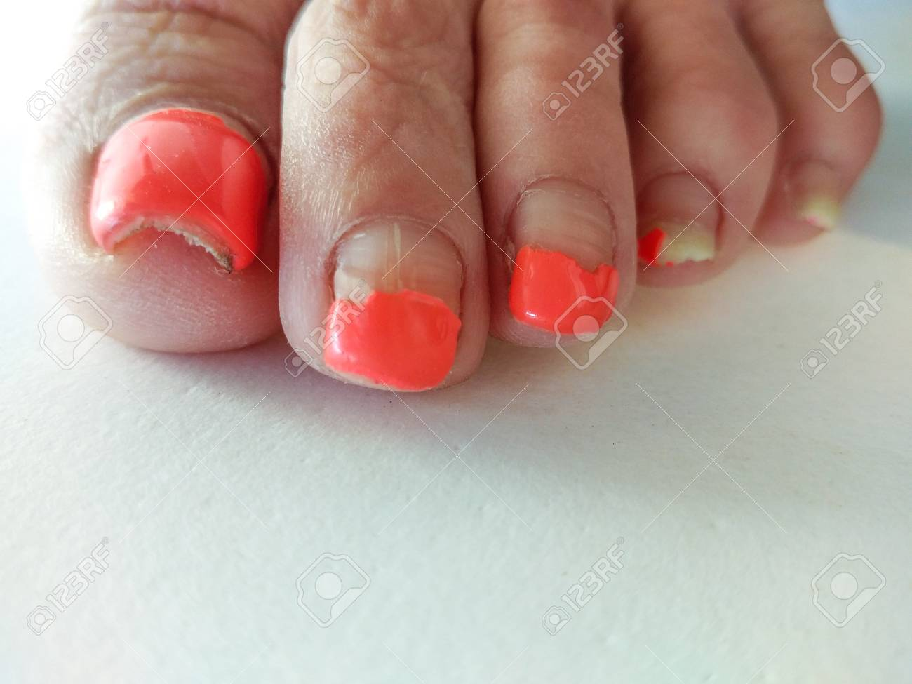 Ugly Pedicure Pictures photo 24