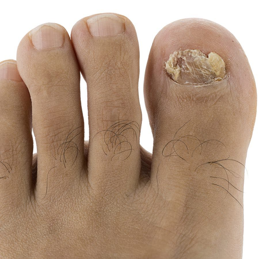 Images Of Ugly Toenails photo 12