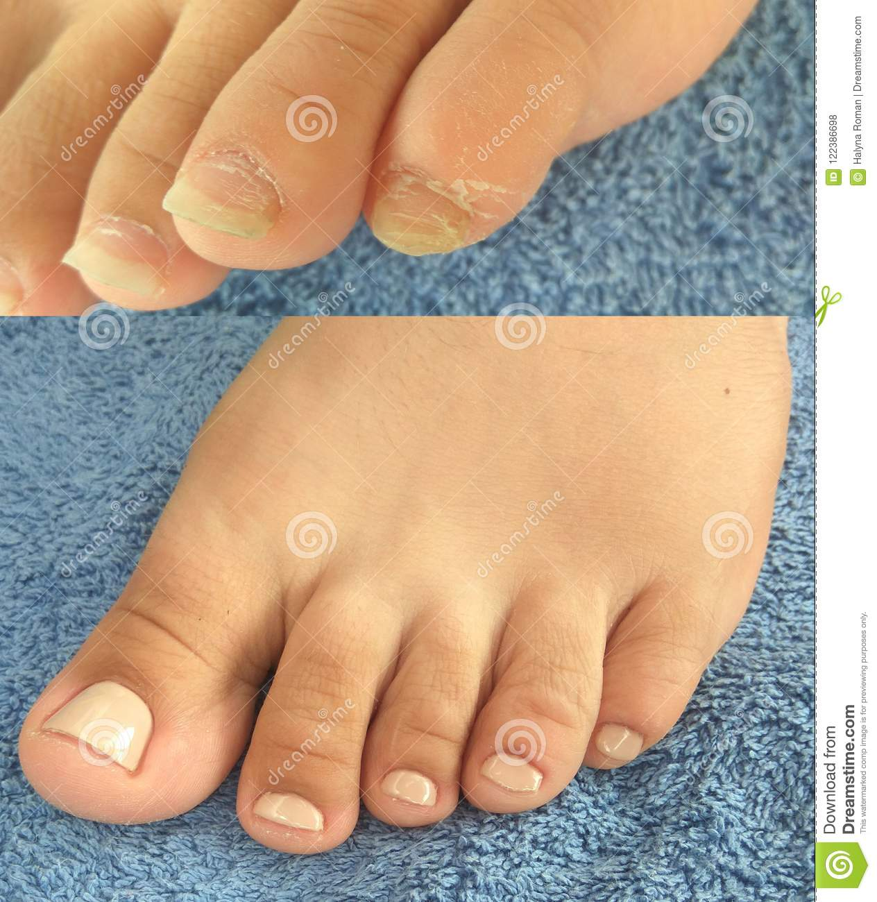 Ugly Pedicure Pictures photo 18