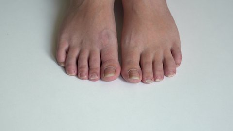 Ugly Pedicure Pictures photo 11