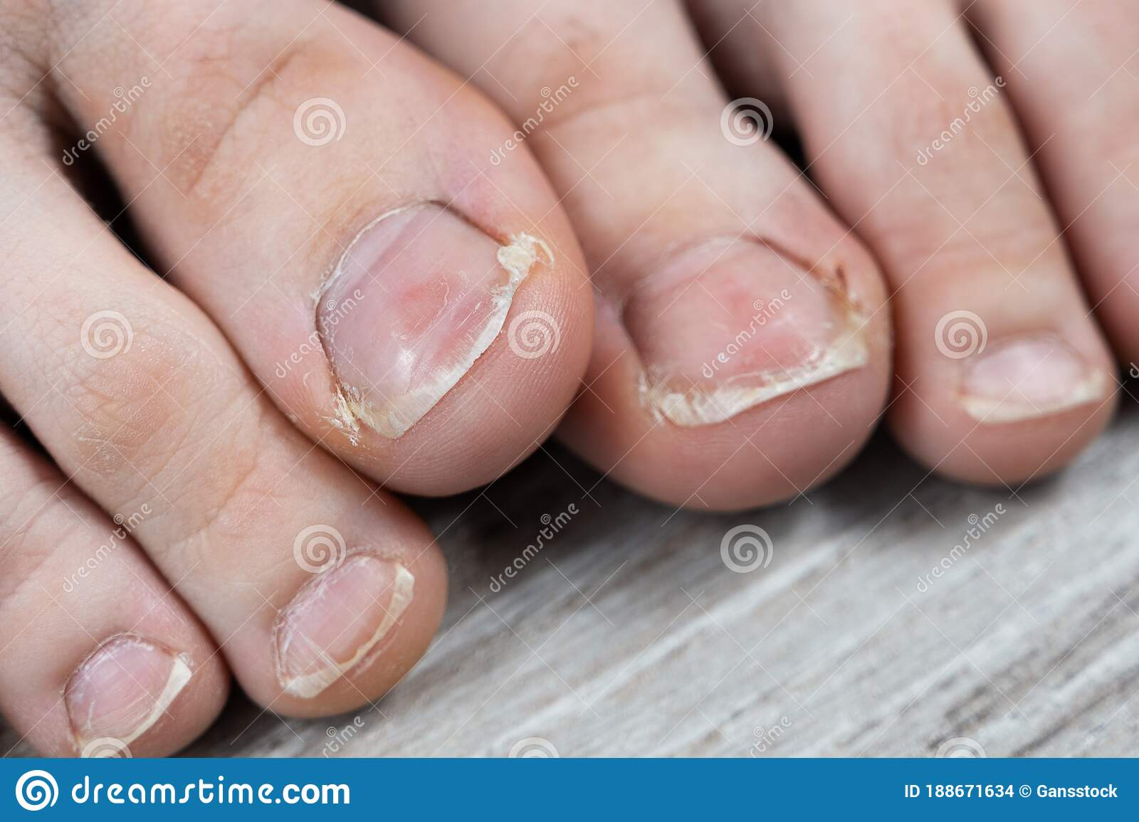 Ugly Pedicure Pictures photo 23