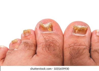 Images Of Ugly Toenails photo 13