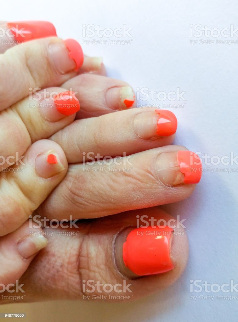 Ugly Pedicure Pictures photo 30