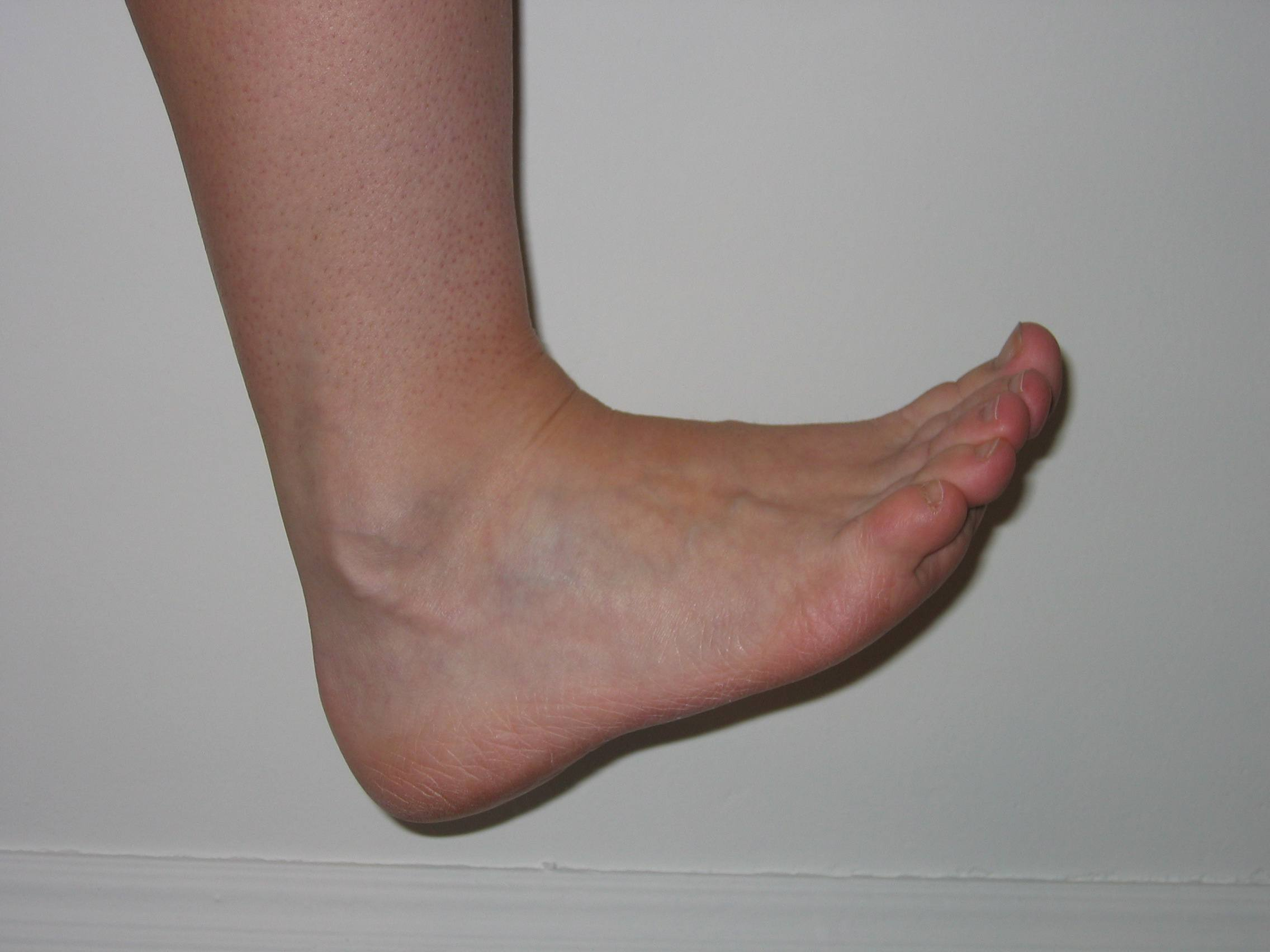 Picture Of A Foot photo 9