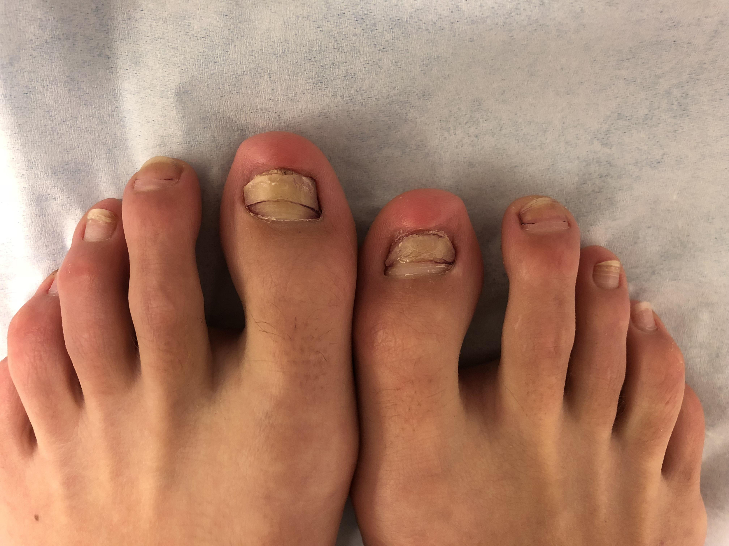 Ugly Pedicure Pictures photo 19