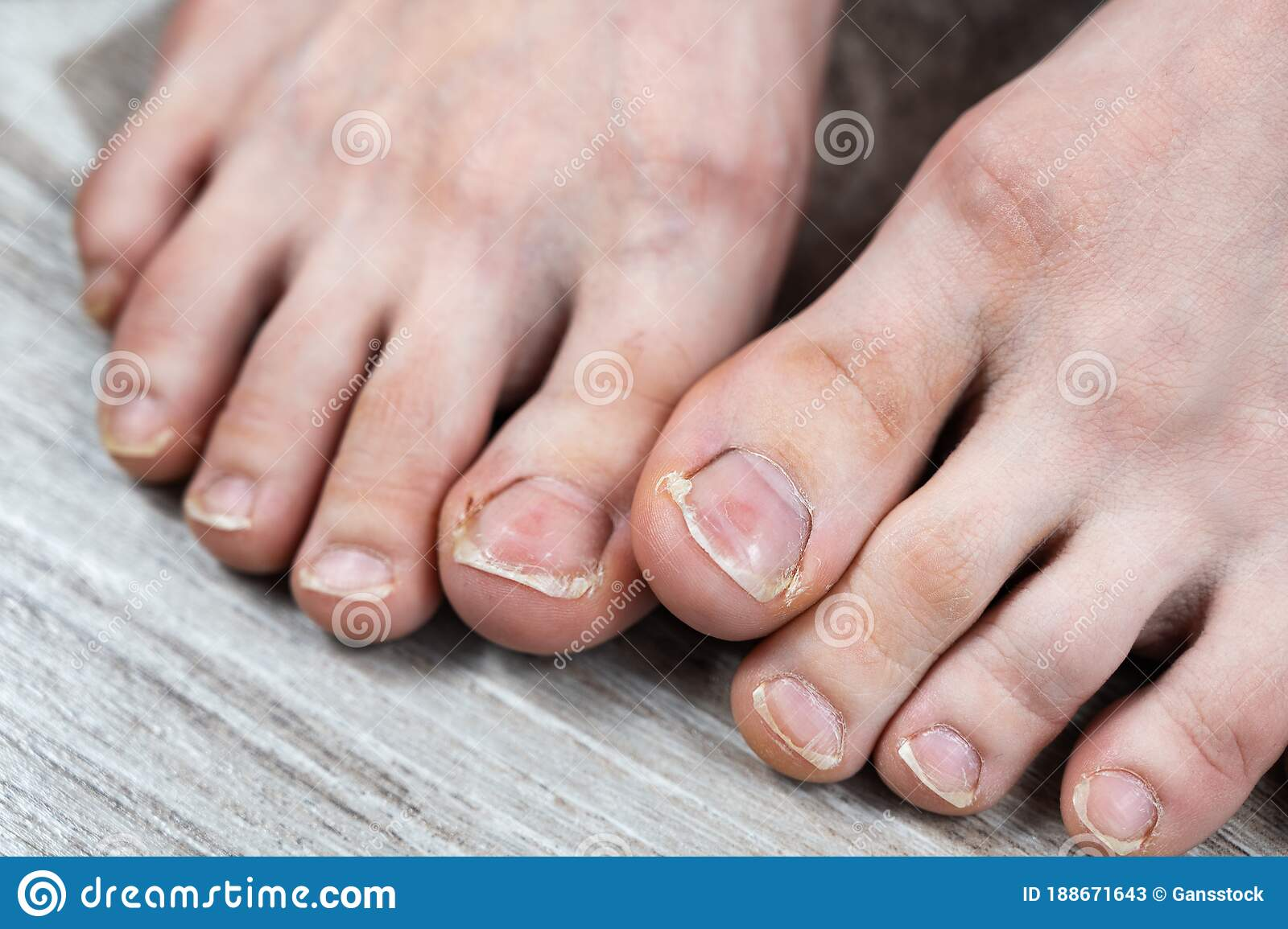 Images Of Ugly Toenails photo 21