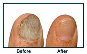 Images Of Ugly Toenails photo 10