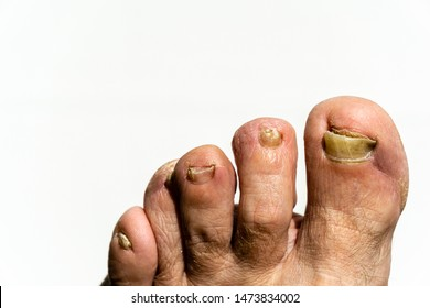 Images Of Ugly Toenails photo 9