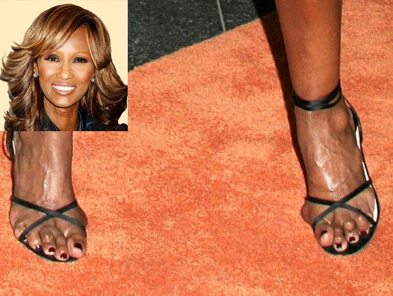 Ugly Feet In Hollywood photo 1