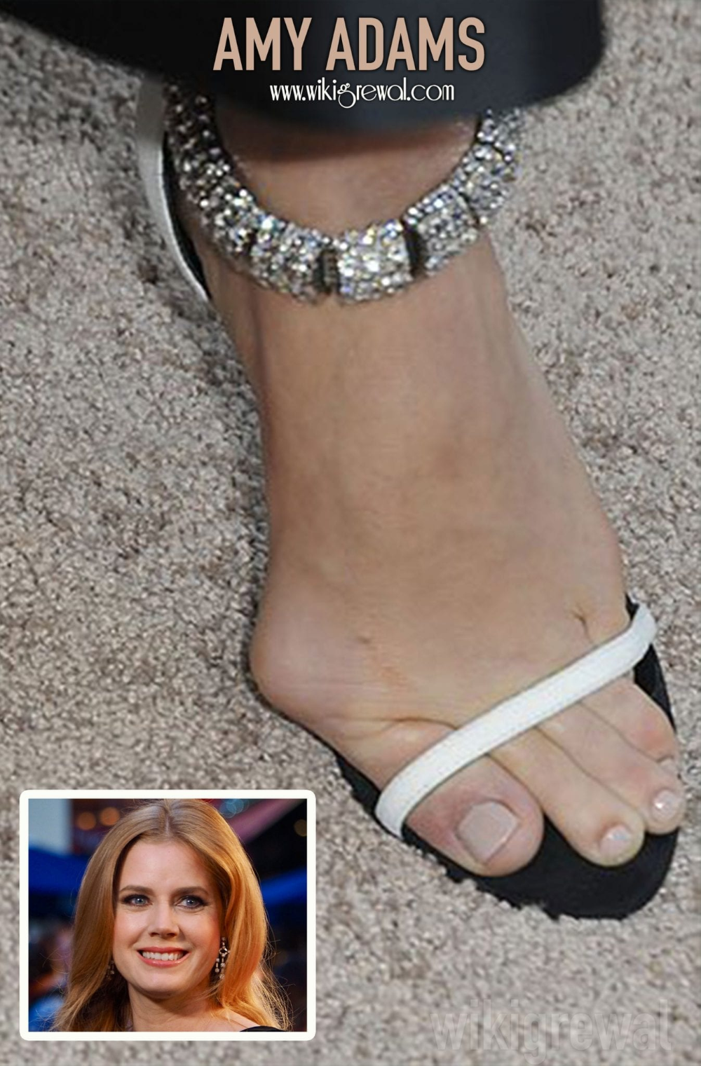 Ugly Feet In Hollywood photo 20