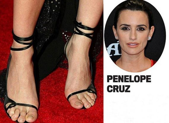 Ugly Feet In Hollywood photo 13