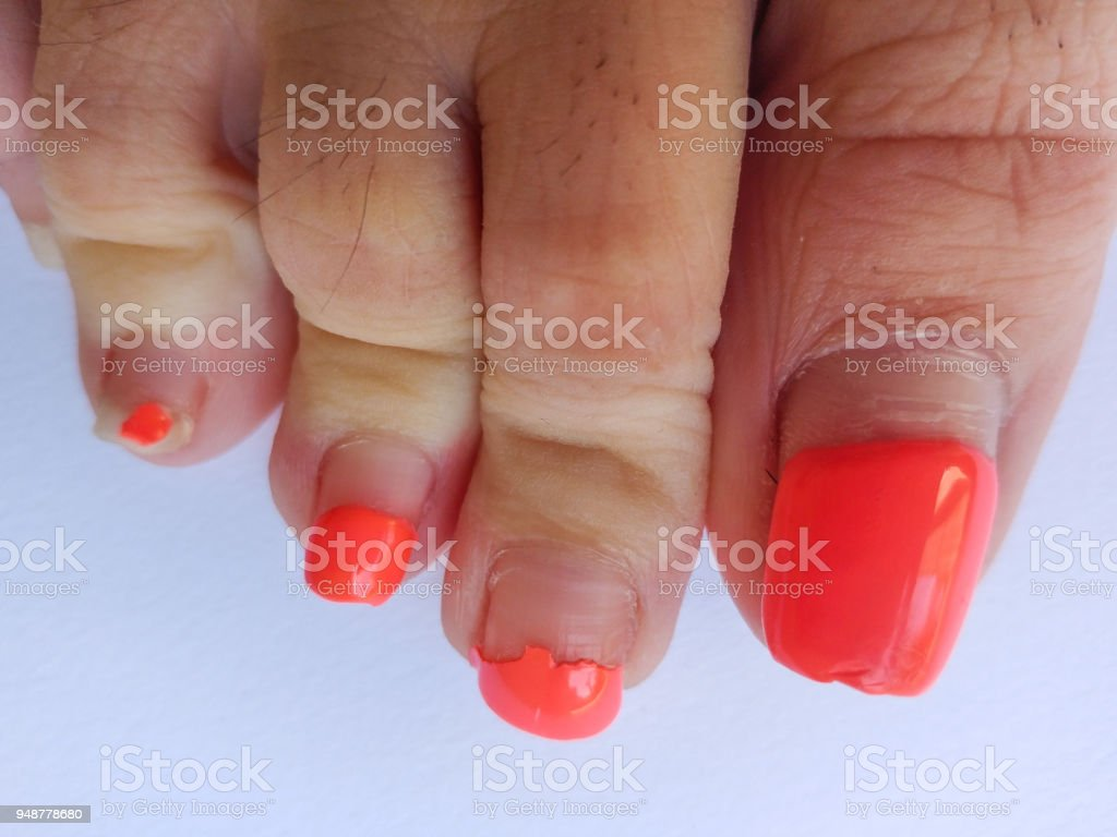 Ugly Pedicure Pictures photo 4