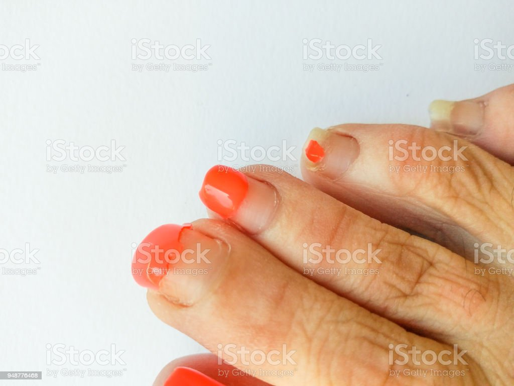 Ugly Pedicure Pictures photo 25