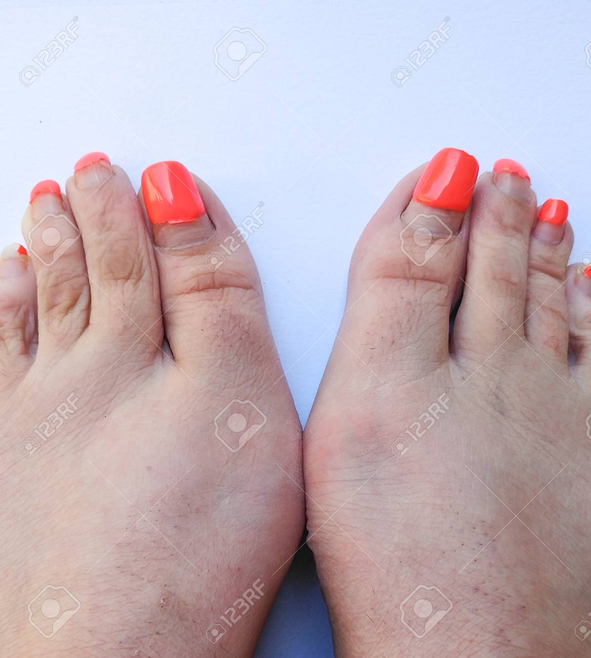 Ugly Pedicure Pictures photo 29